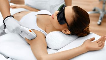 What are the Benefits of Undergoing Laser Hair Removal Treatment?
