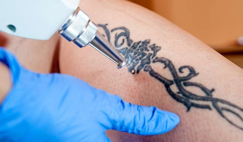 A Quick Look At Tattoo Removal: How Does It Work And Other Things!