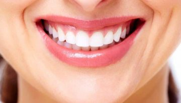 Maintaining a Beautiful Smile to Boost your Self-confidence