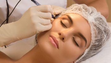 Cosmetic Laser Treatments For Skin: Things To Know!