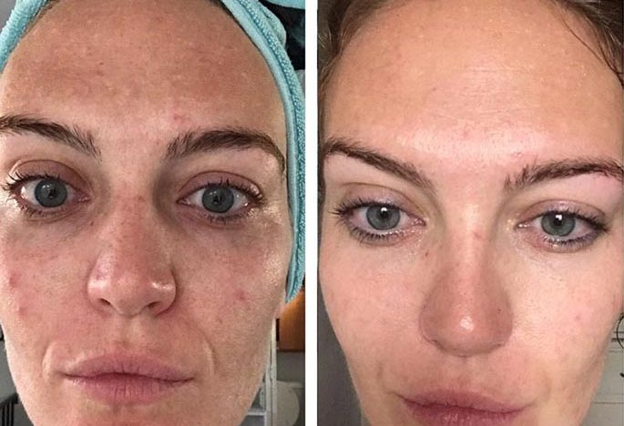 Here Are The Major Benefits Of Microneedling?